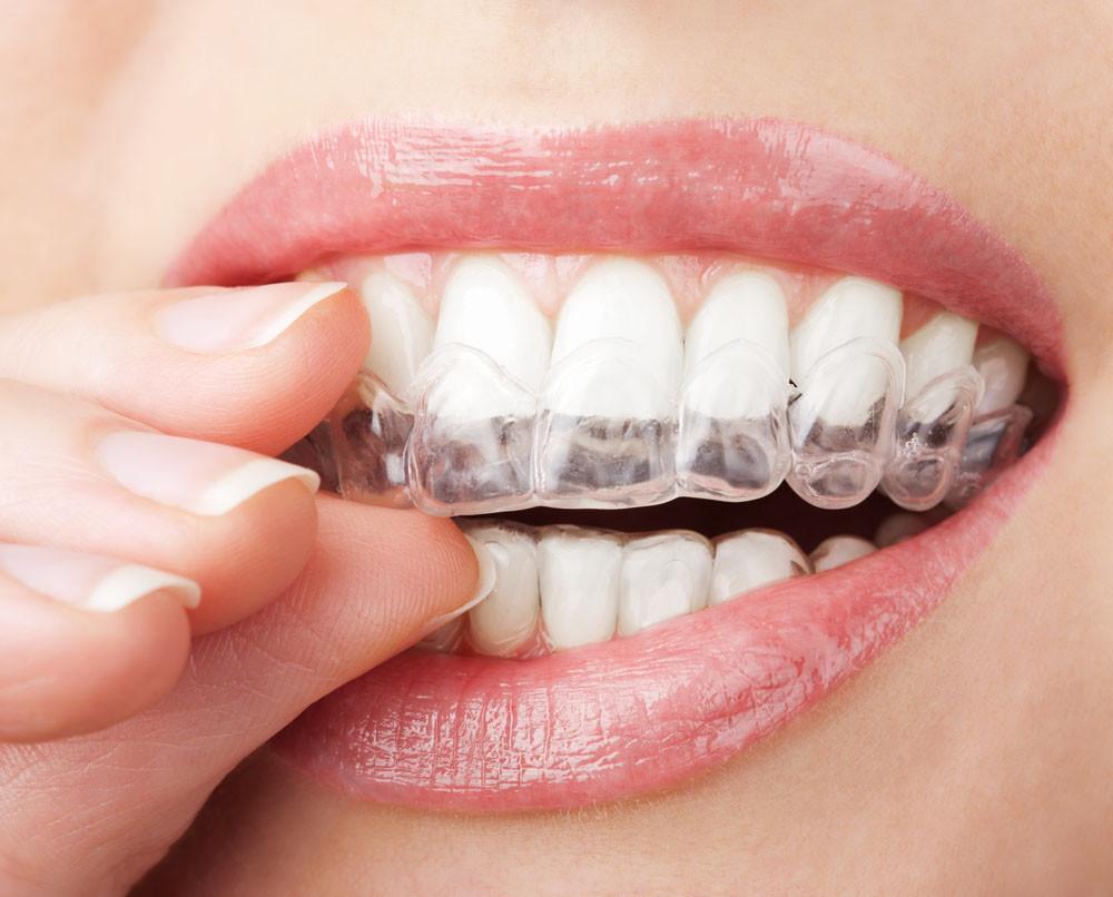 Домашний набор отбеливания зубов PrevDent